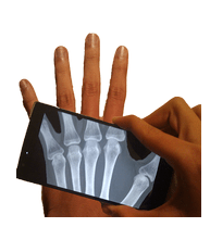 Ultimate X Ray Scanner